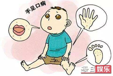 林英雄患昆季口症是怎么样回事 昆季口症到底是什么病?